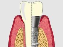 Impianto dentale per sosituire i denti mancanti